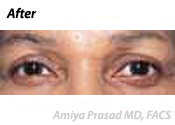 ethnic eye plastic surgery after photo