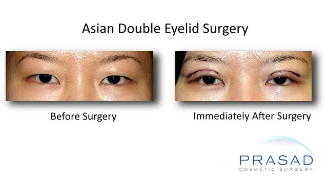 Asian Double Eyelid Surgery Healing Progression 1