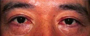 after blepharoplasty surgery asian