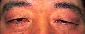 asian male blepharoplasty before