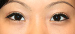 Asian eyelid surgery after small