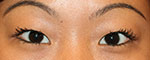 Asian eyelid surgery before small