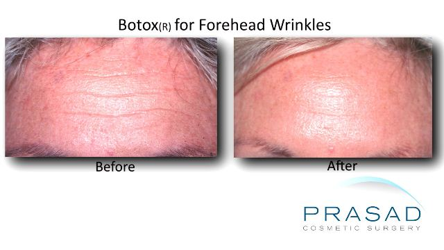 Botox before and after forehead lines female caucasian