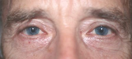 after blepharoplasty surgery