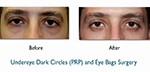 Dark Circles Male