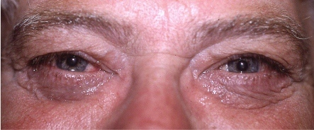 male blepharoplasty after