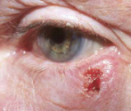 Eyelid cancer photo