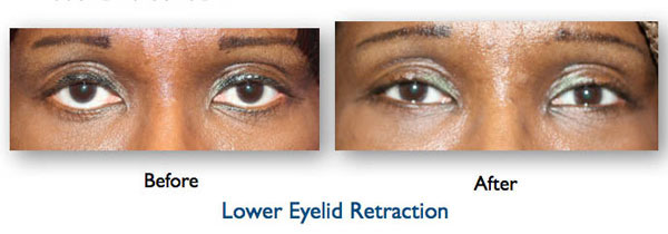 lower eyelid retraction after eyelid surgery causing the eyes to be pulled down - corrective surgery performed by Dr. Amiya Prasad