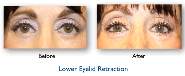 lower eyelid complication repaired by Dr. Amiya Prasad