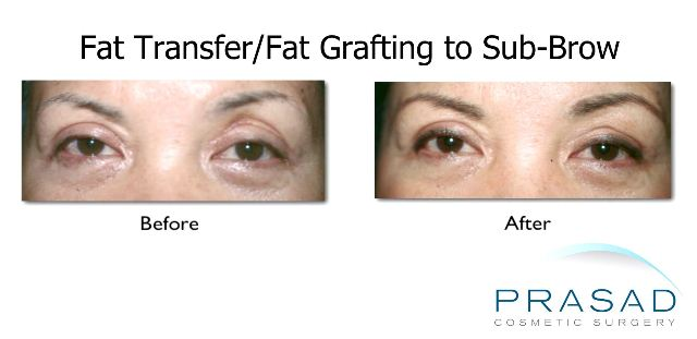 fat transfer/fat grafting treatment for hollow eyes before and after