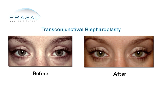 Female Transconjunctival-Blepharoplasty Before and After