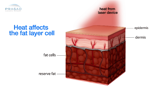 Heating Device on Skin