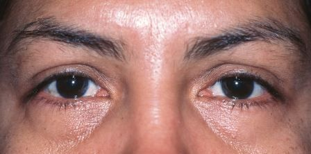 ethnic eye plastic surgery before