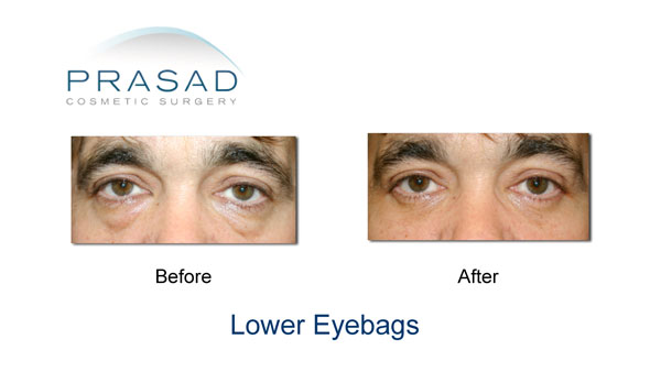 male blepharoplasty before and after