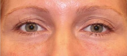 non surgical eyelift after