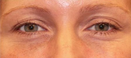 Non-Surgical Eye Lift - New York | Cosmetic Surgeon