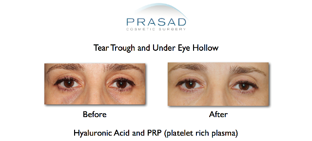 Hollow eyes treatment with filler and PRP before and after