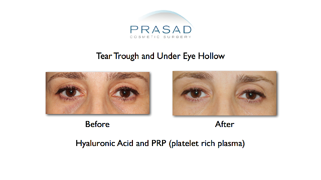 Hollow Eyes Treatment Before and After