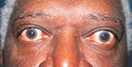 Thyroid Eye Disease African-American Male Elderly
