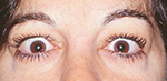 Thyroid Eye Disease Caucasian Middle Age Caucasian Female