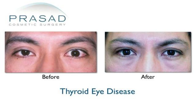 Thyroid Eye Disease before and after