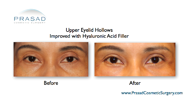 Upper eyelid hollows improved with hyaluronic acid filler before and after