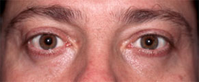 PUFFY LOWER EYELIDS – MAN after