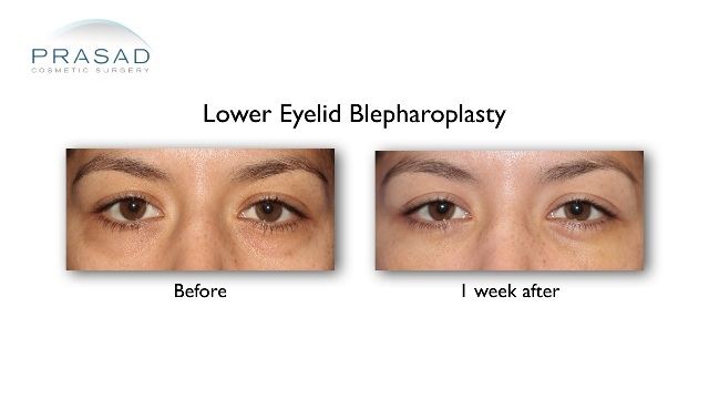 Eye bag surgery with local anesthesia