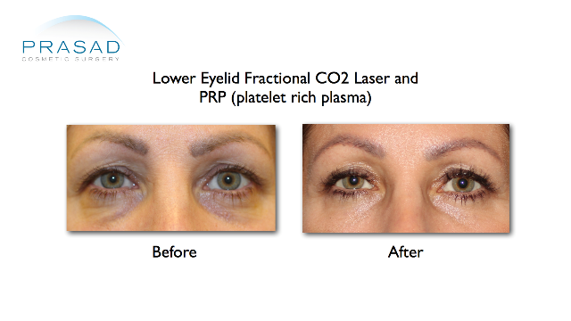 Hollow eyes, pigmentation, and wrinkles are treated with laser and PRP